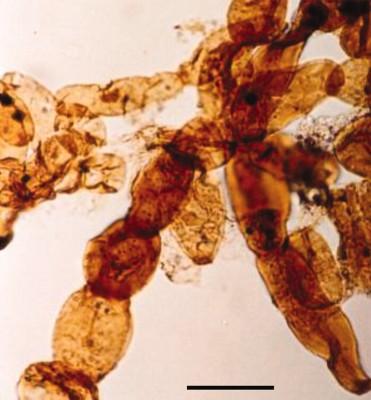 Image au microscope de Reduviasporonites